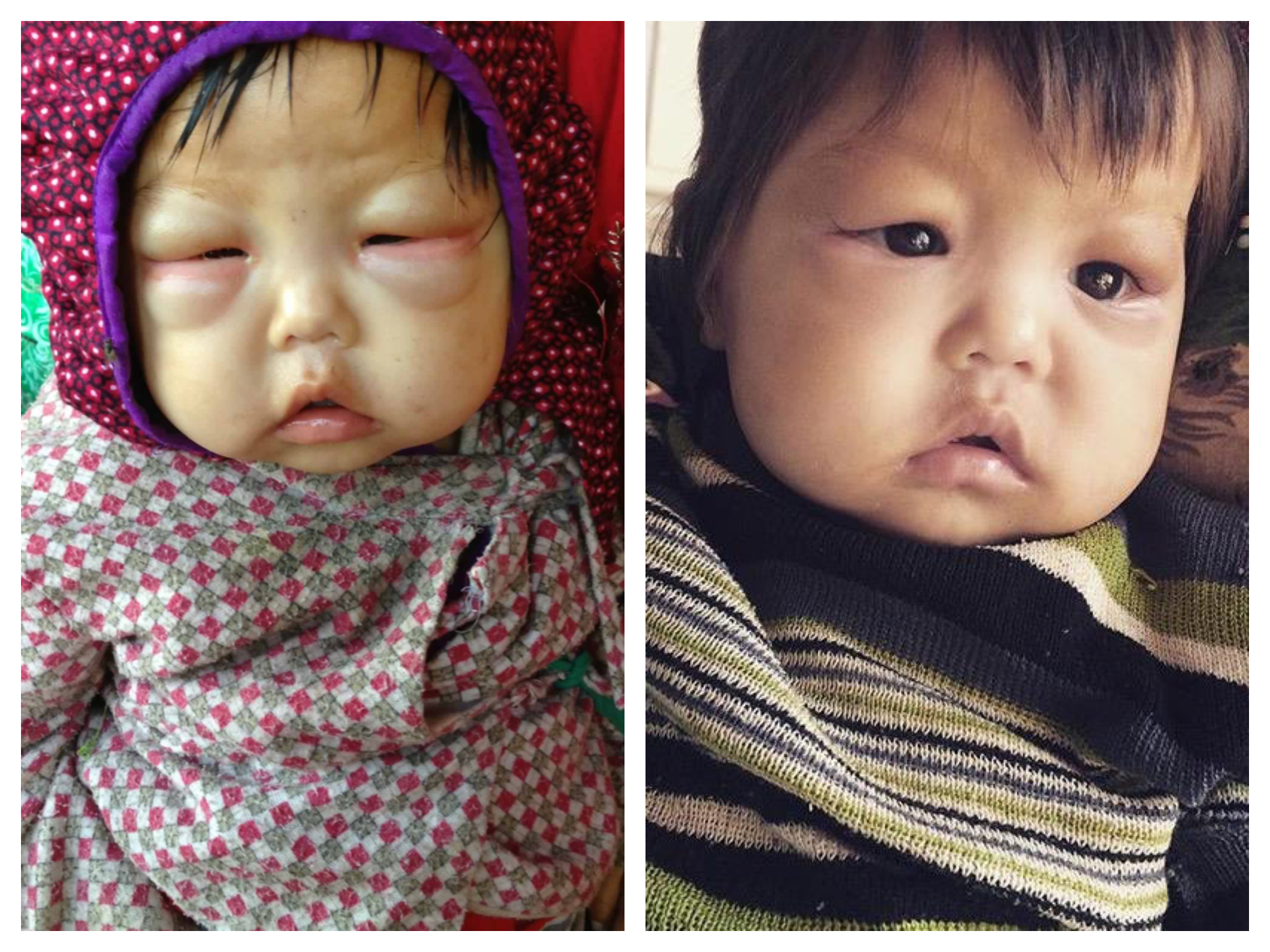 Baby Aruna's Story